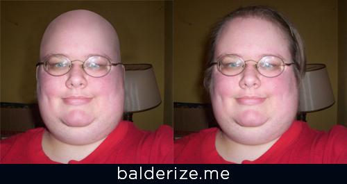 bald girl stories